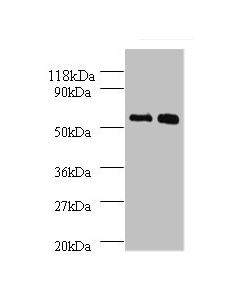 All lanes:Bone morphogenetic protein 3 antibody at 2ug/ml Lane 1:SW1990 whole cell lysate Lane 2:293T whole cell lysate Secondary Goat polyclonal to rabbit at 1/10000 dilution Predicted band size: 53kDa Observed band size: 53kDa