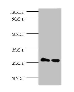 Western blot All lanes: Thiopurine S-methyltransferase antibody at 2ug/ml Lane 1 : EC109 whole cell lysate Lane 2 : 293T whole cell lysate Secondary Goat polyclonal to Rabbit IgG at 1/15000 dilution Predicted band size: 27kDa Observed band size: 27kDa