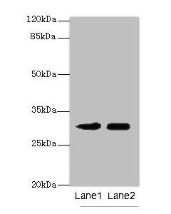 Western blot All lanes: ITM2A antibody at 0.3ug/ml Lane 1 : HL60 whole cell lysate Lane 2 : SH-SY5Y whole cell lysate Secondary Goat polyclonal to Rabbit IgG at 1/10000 dilution Predicted band size: 30,25 kDa Observed band size: 30 kDa