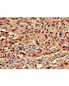 Immunohistochemistry of paraffin-embedded human lung cancer using CSB-PA012511LA01HU at dilution of 1:100