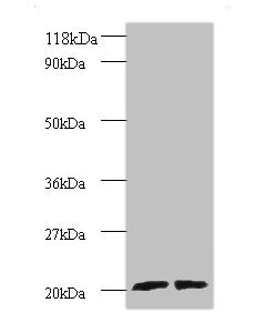 Western blot All lanes: ADP-ribosylation factor-like protein 2 antibody at 2ug/ml Lane 1 : EC109 whole cell lysate Lane 2 : 293T whole cell lysate Secondary Goat polyclonal to Rabbit IgG at 1/15000 dilution Predicted band size: 21,19 kDa Observed band size: 20.2 kDa