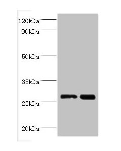 Western blot All lanes:Galectin-3 antibody at 2ug/ml Lane 1:Hela whole cell lysate Lane 2:MCF-7 whole cell lysate Secondary Goat polyclonal to rabbit at 1/10000 dilution Predicted band size: 26kDa Observed band size: 26kDa
