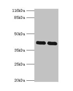 Western blot All lanes:MAPK13 antibody at 2ug/ml Lane 1:Hela cells Lane 2:A549 cells Secondary Goat polyclonal to rabbit at 1/10000 dilution Predicted band size: 43,29 kDa Observed band size: 42 kDa