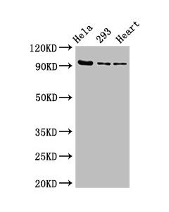 Western Blot Positive WB detected in:Hela whole cell lysate,293 whole cell lysate,Rat heart tissue All lanes:MCM4 antibody at 2.7