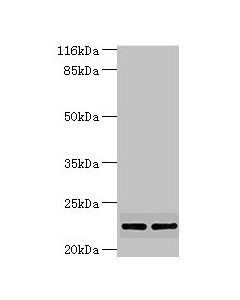 Western blot All lanes:MTHFS antibody at 2ug/ml Lane 1:Hela whole cell lysate Lane 2:jurkat whole cell lysate Secondary Goat polyclonal to rabbit at 1/10000 dilution Predicted band size: 24,21 kDa Observed band size: 23 kDa