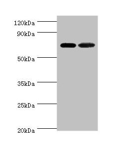 Western blot All lanes:X-ray repair cross-complementing protein 6 antibody at 2ug/ml Lane 1:Hela whole cell lysate Lane 2:A549 whole cell lysate Secondary Goat polyclonal to rabbit at 1/10000 dilution Predicted band size: 70,66 kDa Observed band size: 70 kDa