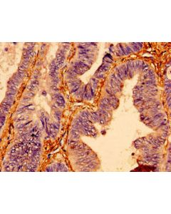 Immunohistochemistry of paraffin-embedded human colon cancer using CSB-PA01714A0Rb at dilution of 1:100