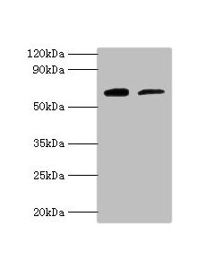 Western blot All lanes:Proactivator polypeptide antibody at 2ug/ml Lane 1:HepG2 whole cell lysate Lane 2:Hela whole cell lysate Secondary Goat polyclonal to rabbit at 1/10000 dilution Predicted band size: 58kDa Observed band size: 58kDa