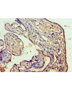 Immunohistochemistry of paraffin-embedded human placenta tissue using CSB-PA019213HA01HU at dilution 1:100