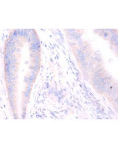 Immunohistochemistry of paraffin-embeded human colorectal carcinoma using CSB-PA022902DA01HU at 1:100