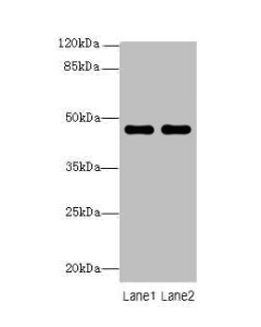 Western blot All lanes: ZNF821 antibody at 8ug/ml Lane 1 : MCF7 whole cell lysate Lane 2 : HCT116 whole cell lysate Secondary Goat polyclonal to Rabbit IgG at 1/10000 dilution Predicted band size: 47,43 kDa Observed band size: 47 kDa