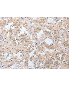 The image on the left is immunohistochemistry of paraffin-embedded Human thyroid cancer tissue using CSB-PA049918(LY96 Antibody) at dilution 1/20, on the right is treated with fusion protein. (Original magnification: