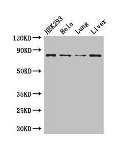 Western Blot Positive WB detected in:HEK293 whole cell lysate,Hela whole cell lysate,Mouse lung tissue,Mouse liver tissue All lanes: MLH1 antibody at 3ug/ml Secondary Goat polyclonal to rabbit IgG at 1/50000 dilution Predicted band size: 85,59,74 kDa Observed band size: 85 kDa