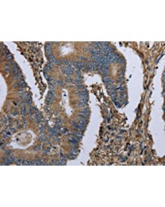 The image on the left is immunohistochemistry of paraffin-embedded Human colon cancer tissue using CSB-PA290508(MCM3AP Antibody) at dilution 1/30, on the right is treated with fusion protein. (Original magnification: