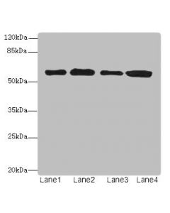 Western blot All lanes: TXNRD1 antibody at 5ug/ml Lane 1 : Jurkat whole cell lysate Lane 2 : A549 whole cell lysate Lane 3 : MCF7 whole cell lysate Lane 4 : Hela whole cell lysate Secondary Goat polyclonal to Rabbit IgG at 1/10000 dilution Predicted band size: 71,60,66,61,55,68,51 kDa Observed band size: 60 kDa