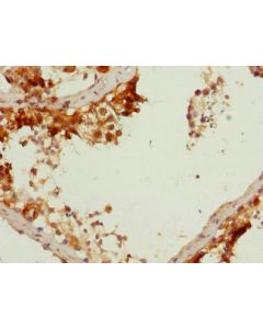 Immunohistochemistry of paraffin-embedded human testis tissue using CSB-PA623785ESR1HU at dilution 1:100