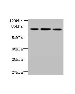 Western blot All lanes: ARMC9 antibody at 6ug/ml Lane 1 : Jurkat whole cell lysate Lane 2 : CEM whole cell lysate Lane 3 : A549 whole cell lysate Secondary Goat polyclonal to Rabbit IgG at 1/10000 dilution Predicted band size: 92,76 kDa Observed band size: 76 kDa