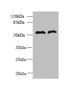 Western blot All lanes: TRIT1 antibody at 3ug/ml Lane 1 : Jurkat whole cell lysate Lane 2 : Raji whole cell lysate Secondary Goat polyclonal to Rabbit IgG at 1/10000 dilution Predicted band size: 53,38,50,44,19 kDa Observed band size: 53 kDa