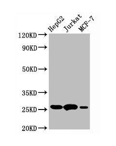 Western Blot Positive WB detected in:HepG2 whole cell lysate,Jurkat whole cell lysate,MCF-7 whole cell lysate All lanes:BCL2 antibody at 1