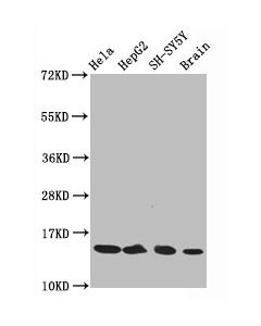 Recombinant Antibodies Arp American Research Products Inc