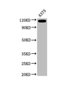 Western Blot Positive WB detected in:A375 whole cell lysate All lanes:CD146 antibody at 0.6